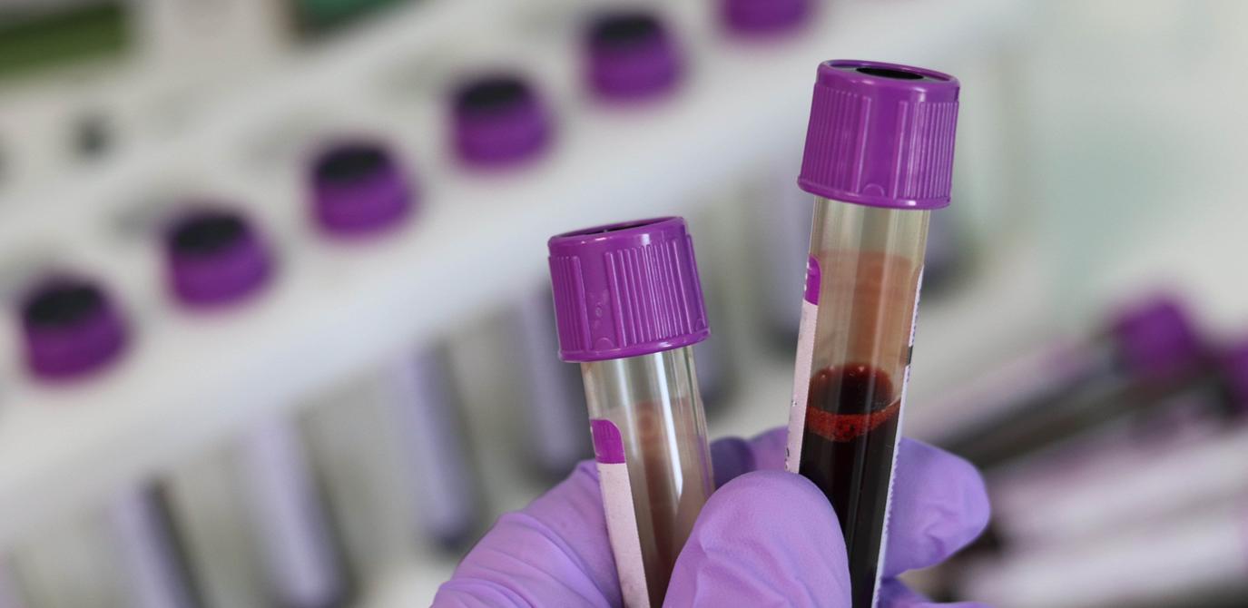 فحوصات الدم السرطانية