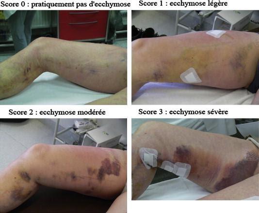 المنظر بعد علاج الدوالي بالليزر الجراحي