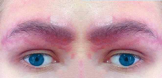 التهاب جلد الحاجب