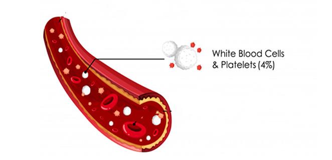 هذا تأثير زيادة أو نقصان كريات الدم البيضاء عن معدلها الطبيع الكونسلتو