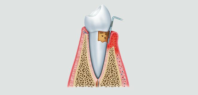 التهاب الفم واللثة