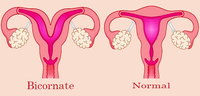 الرحم ذو القرنين