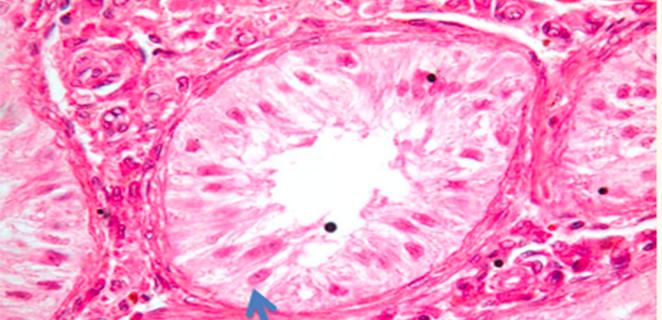 متلازمة خلايا سيرتولي فقط