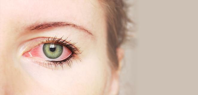 التهاب ملتحمة العين المزمن