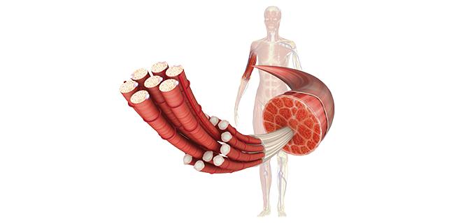 الضمور العضلي التوتري