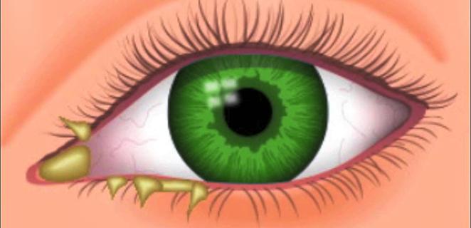 رمد العين التهاب الملتحمة