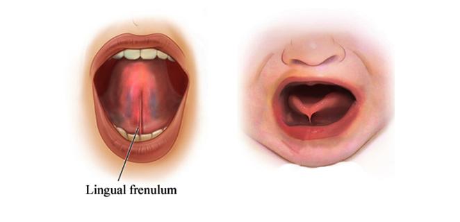 التصاق اللسان Ankyloglossia اسباب اعراض علاج الطبي