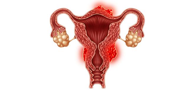 اعراض سرطان الرحم وطرق علاجه، وكيف يمكن الوقاية منه؟ | الطبي