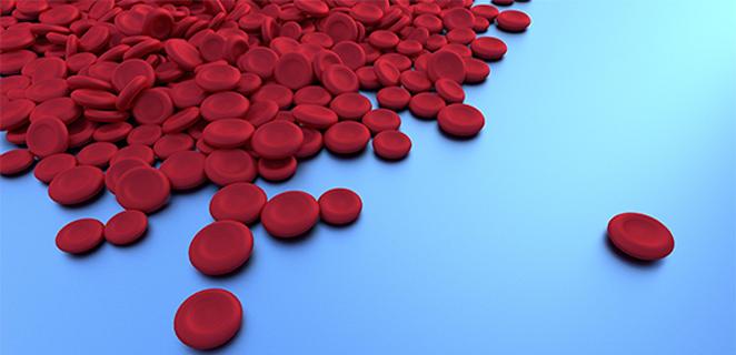 سيولة الدم (هيموفيليا)