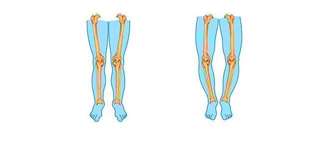 تلين العظام