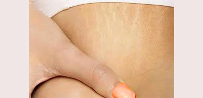 تشقق الجلد