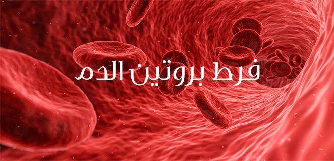 ارتفاع البروتين في الدم (فرط بروتين الدم)