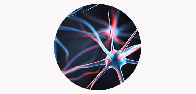اعتلال عصبي متعدد التهابي مزمن مزيل للنخاعين