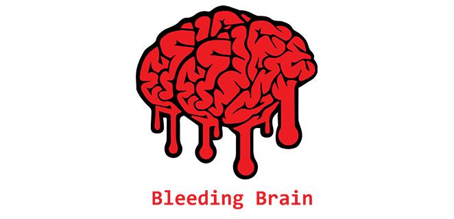 نزيف دماغي