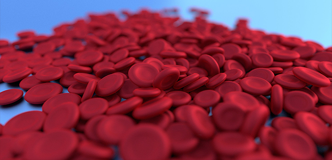 فقر الدم بعوز الحديد