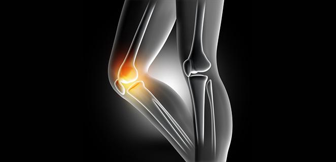 التهاب المفاصل والعظام التنكسي