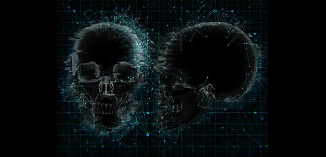 صورة الجمجمة باستخدام الأشعة السينية العادية