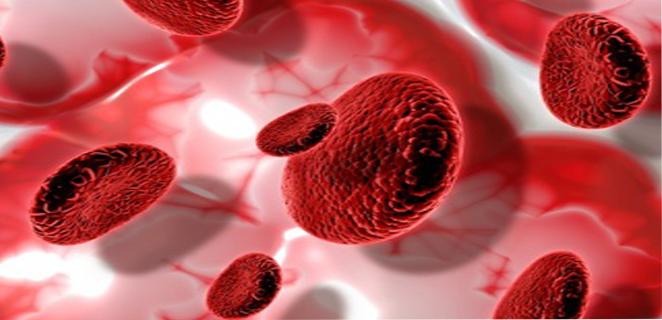 سرطان الدم (ابيضاض الدم)