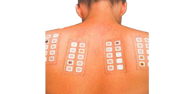 اختبار الرقعة ( لتشخيص الحساسية الجلدية)