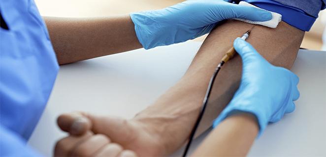 قطع الوريد لاستخراج الدم