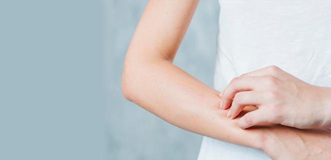 التهاب الجلد التقشري