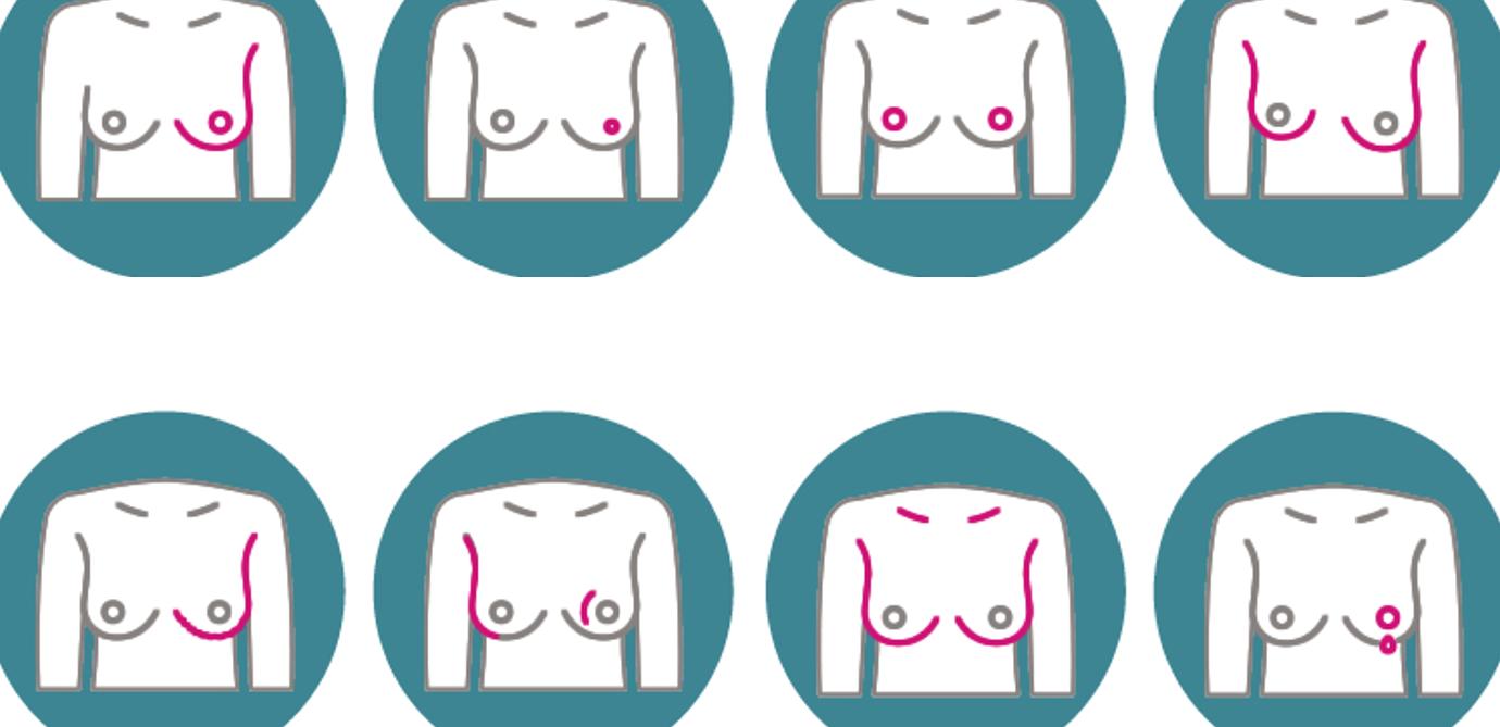 علامات سرطان الثدي واعراضه