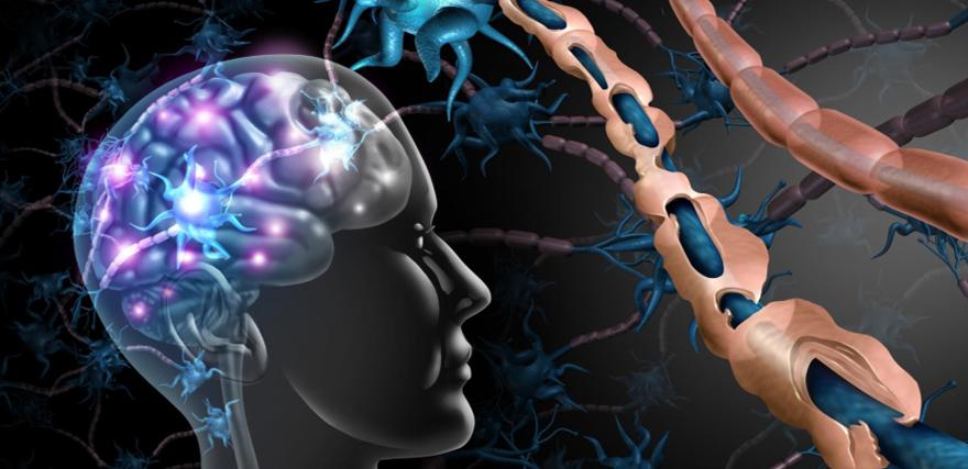 التصلب العصبي المتعدد أو التصلب اللويحي