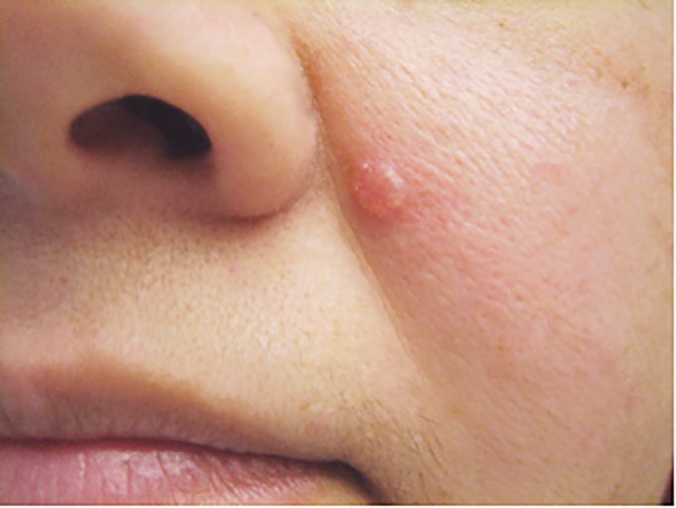 اعراض سرطان الجلد القاعدي