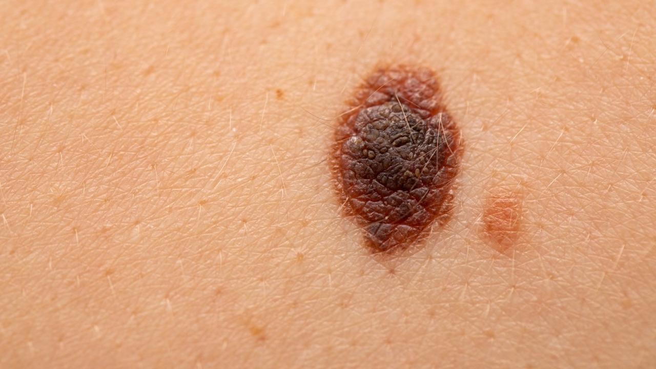 اعراض سرطان الجلد الميلاني