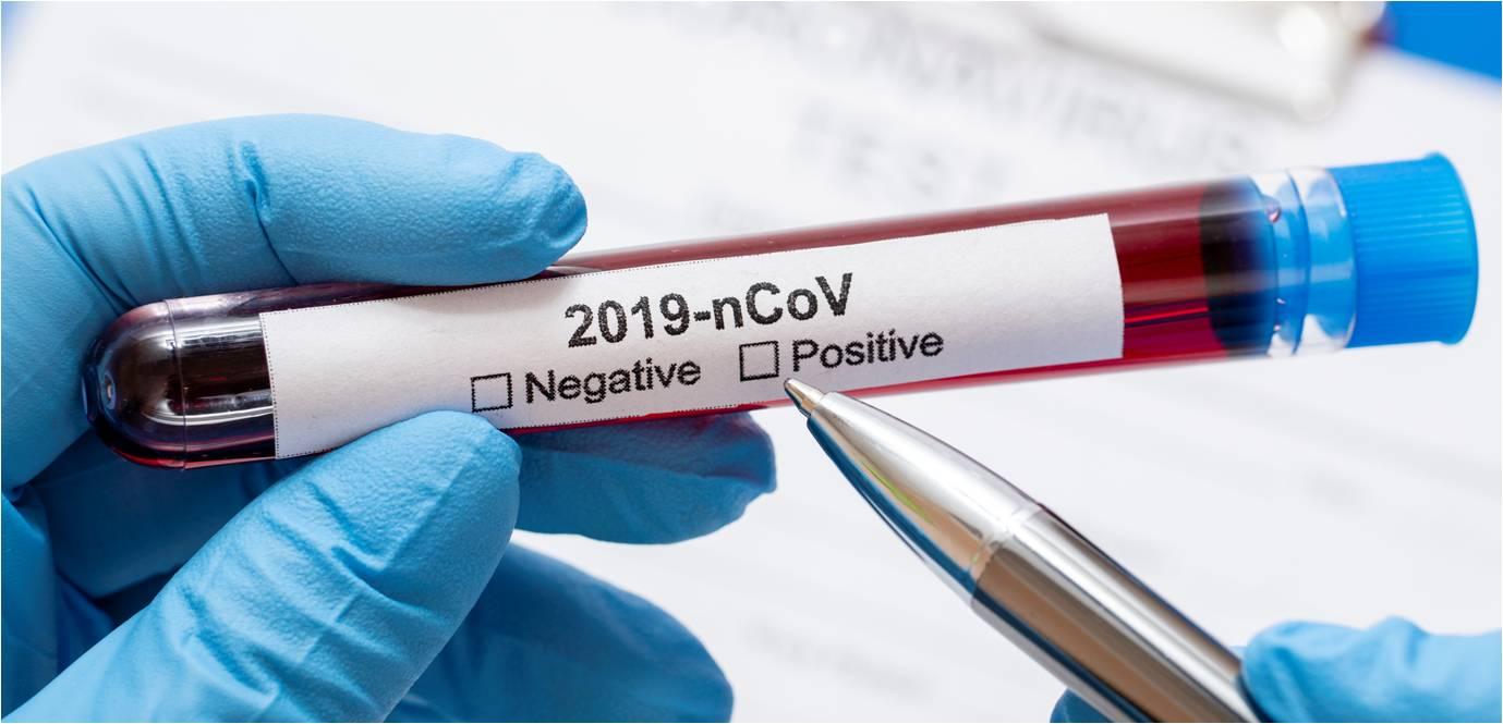 فيروس كورونا والايس كريم