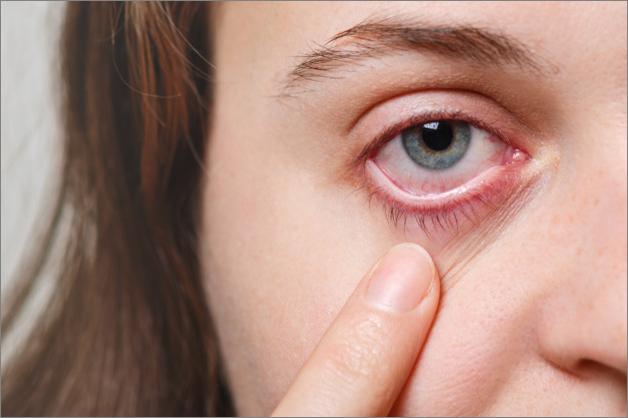 ارتباط  شدة الاصابة بفيروس كورونا بمشاكل خطيرة قد تصيب العينين