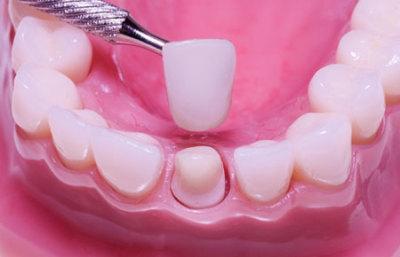 ترميم الاسنان للاطفال