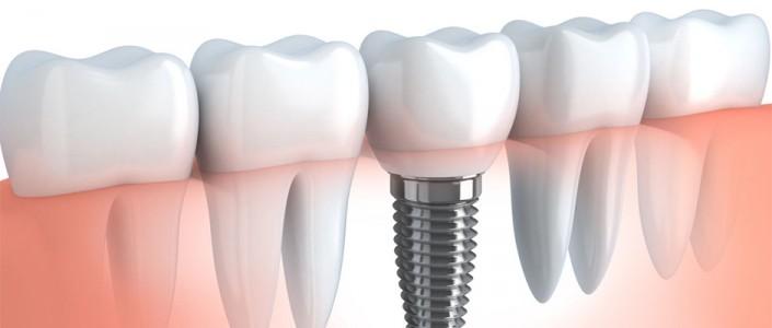 أسباب زراعة الأسنان وكيفيتها