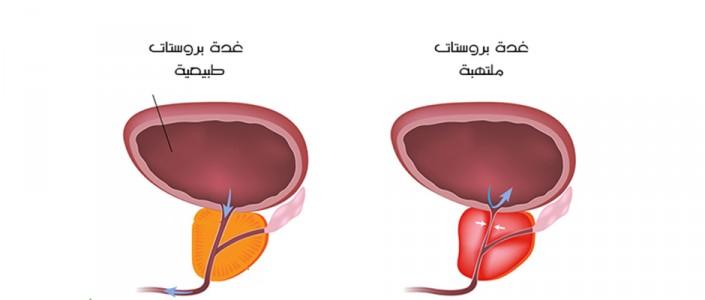 أمراض البروستات وتدابيرها الوقائية