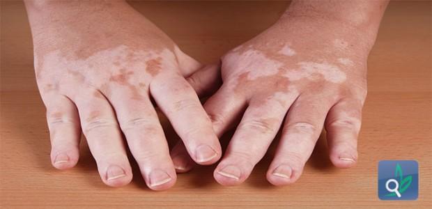 البهاق مرض جلدي شائع ومتعدد الأسباب