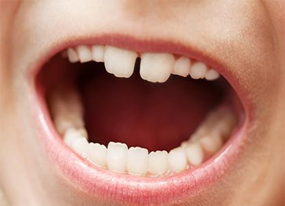 ما أهمية علاج الأسنان اللبنية للطفل؟