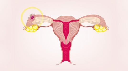 الحمل خارج الرحم (الحمل الانبوبي)