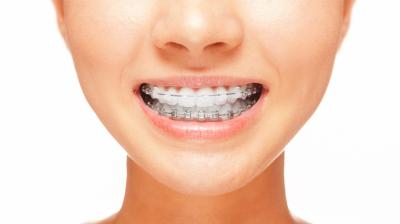 معالجة التسوس و تقويم الأسنان