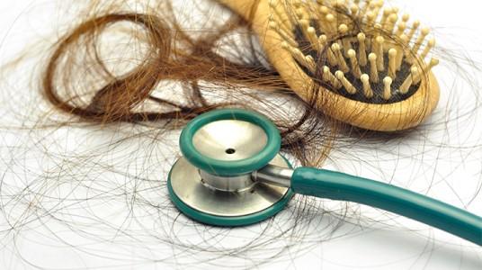 سوء التغذية والإجهاد والتغيرات الهرمونية أهم أسباب تساقط الشعر