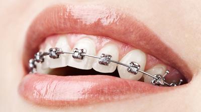 بعد تركيب تقويم للأسنان