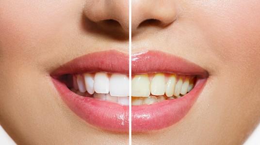 تغير لون الأسنان: الأسباب و العلاج