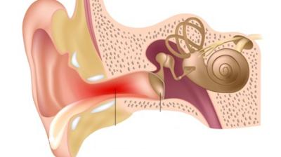 التهاب الاذن الظاهرة