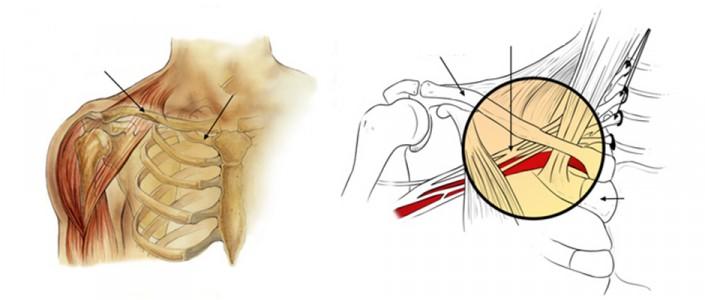 متلازمة مخرج الصدر  Thoracic outlet syndrome