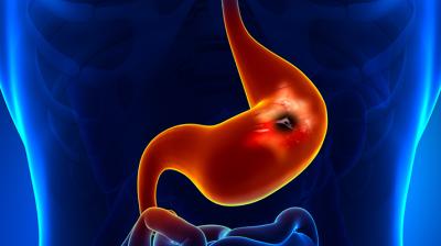 ادوية المفاصل قد تسبب قرحة هضمية