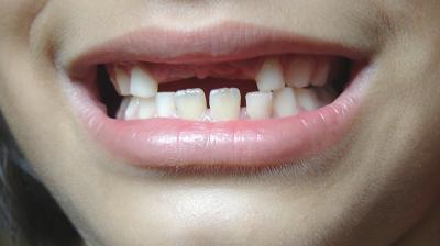 تعويض الاسنان المفقودة
