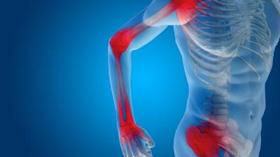 ألم العضلات الروماتزمي (Polymyalgia Rheumatica PMR)