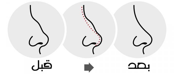 عمليات تجميل الانف و تقويم الحاجز الانفي