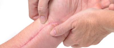 اثار الجروح و الندبات