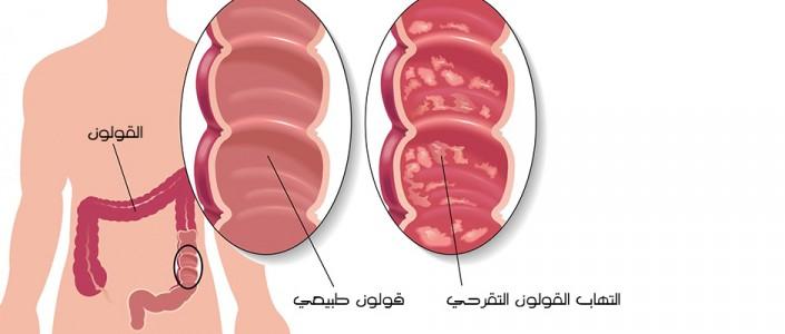 التهاب القولون التقرحي وكيفية التعامل معه