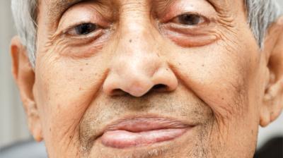 التهاب العصب الوجهي السابع